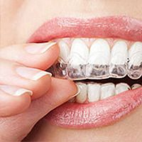 New York Invisalign Dentist