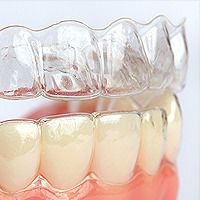 Invisalign Orthodontics for Adults