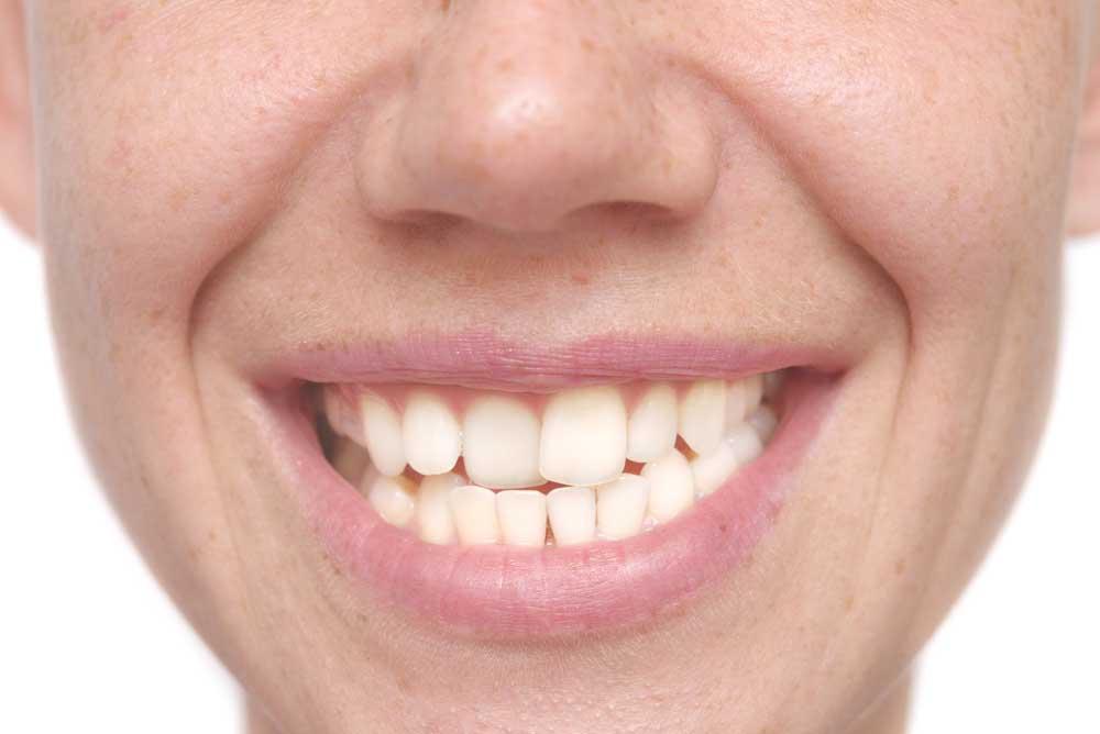 How to Fix Crooked Teeth - Charleston, SC - Hilton Head, SC