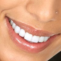 Woman's smile after porcelain veneers