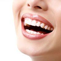 Teeth Whitening Charleston
