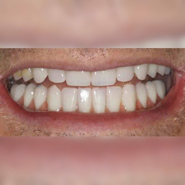 After photo of Hybridge dental implants patient