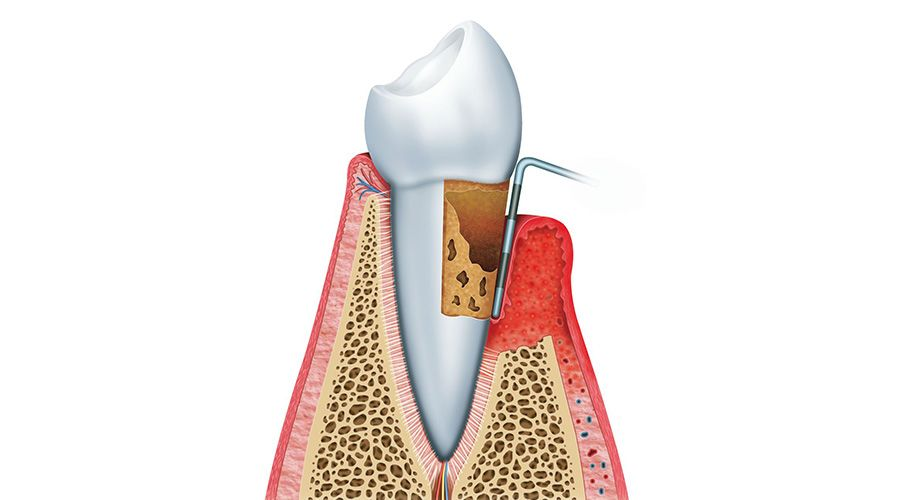 An illustration of gum disease