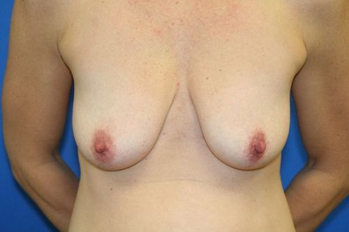 breast lift before photo