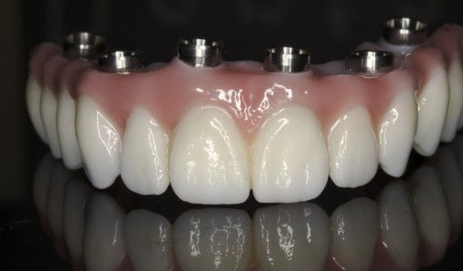 South Florida Prettau Dental Bridges