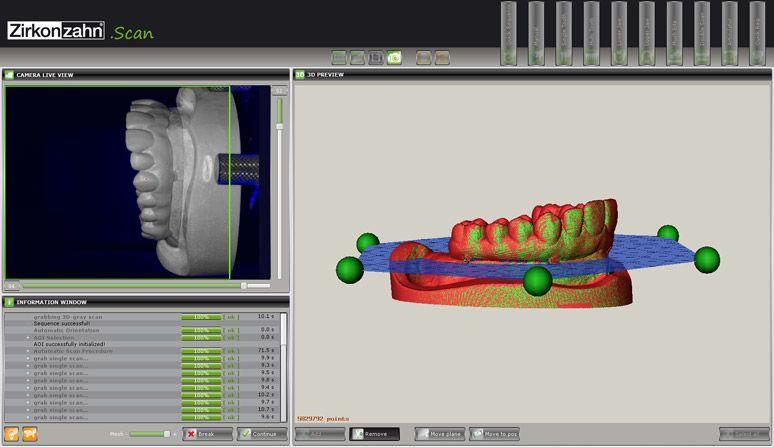 3D CT Scan Illustration