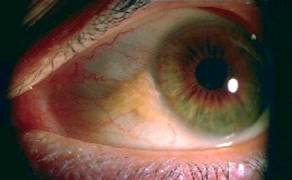 pterygium & pinguecula surgery kansas city - overland park, Skeleton