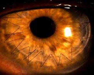 Man with Astigmatism