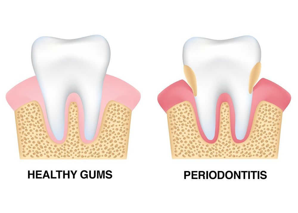 illustration of healthy gums and periodontitis