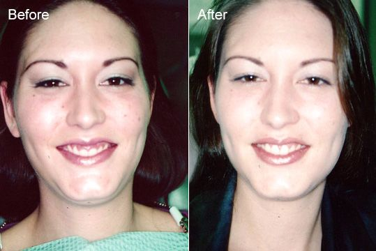 A woman smiles after her gum reshaping procedure.
