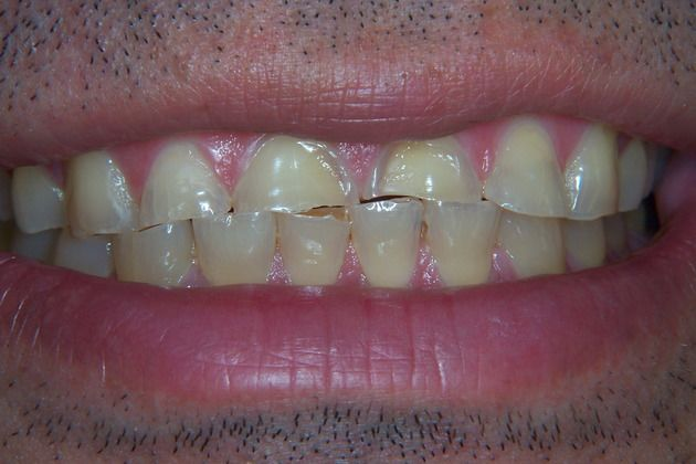 Before picture of damaged smile