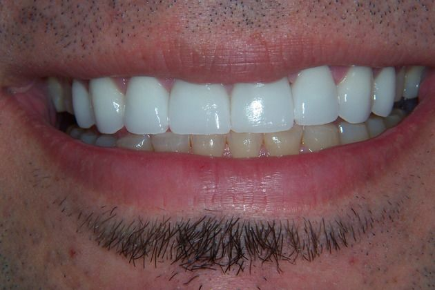 After picture of full mouth reconstruction case
