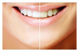 Teeth Bleaching Philadelphia