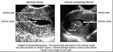 Normal uterus/ Uterus containing fibroid