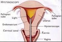 Hysteroscopy (HSC)