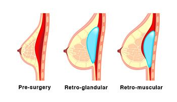 Illustration showing the location of implants with retro-glandular and retro-muscular placement