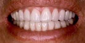 Closeup of teeth after smile makeover