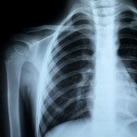 An X-ray of a patient's chest