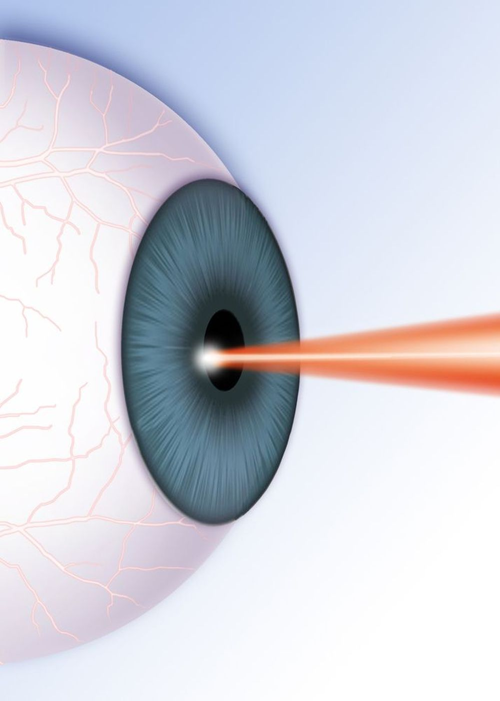 An illustrated example of a laser technique for an eye disorder