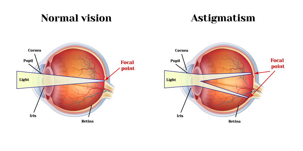 Illustration of normal eye versus astigmatism