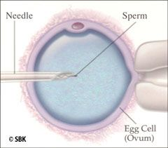 Illustration of IVF process