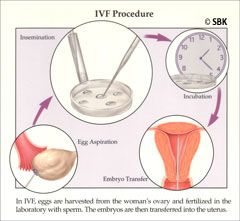 Illustration of steps in IVF