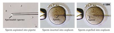 Photos of steps involved in sperm assisted hatching
