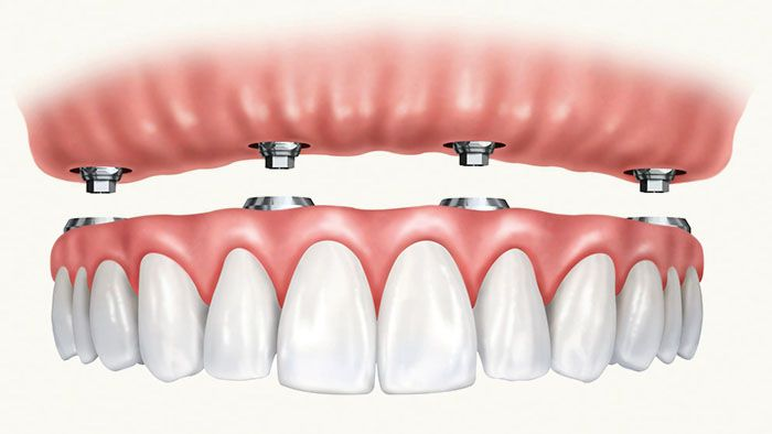 Illustration of All-on-4 dental implants