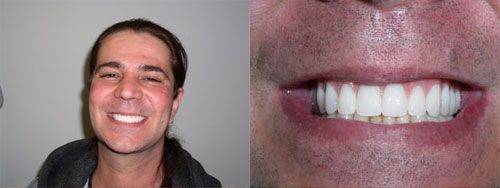 Peter L. - Before and After Picture