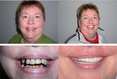 Deborah A. - Before and After Picture