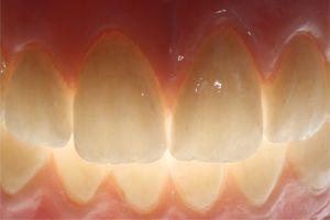 a set of nice teeth