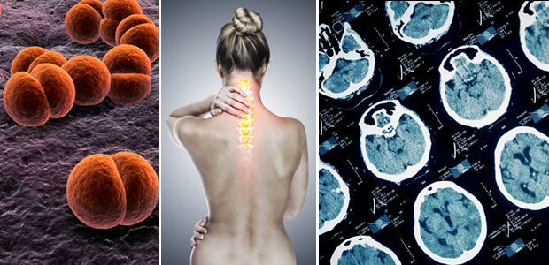 Images of bacteria, woman with highlighted spine, and brain scans