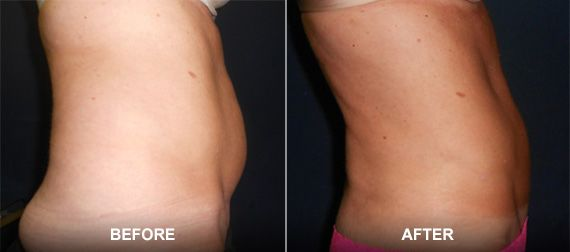 Before and after images of a liposuction patient.