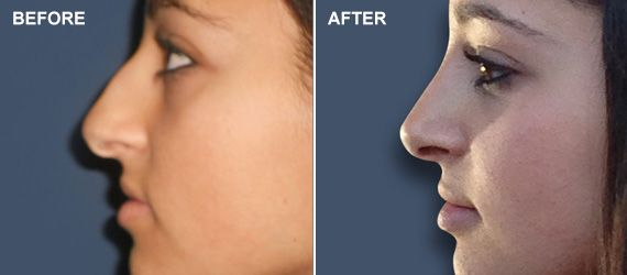 A before and after photo of a rhinoplasty patient shows a natural looking result.