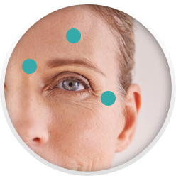 Photo of woman with dots to show popular BOTOX injection spots