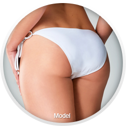 Image of buttock augmentation patient