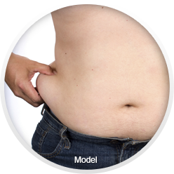 Image of liposuction patient