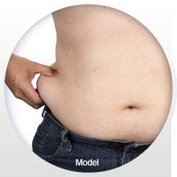 Image of liposuction patient