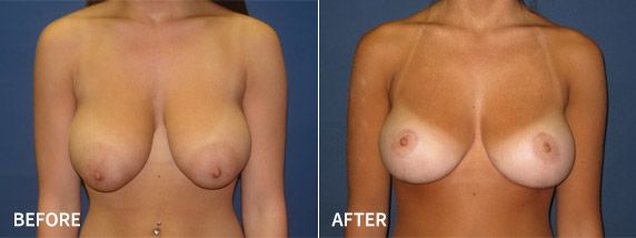 Before and after breast lift photo