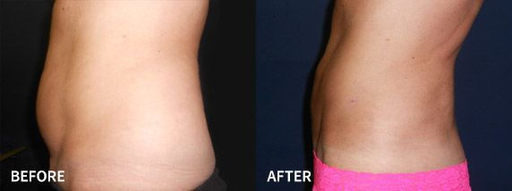 A before and after photo of an individual's tummy after a liposuction procedure