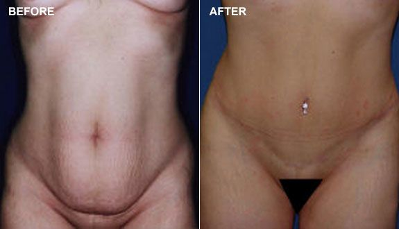 A before and after picture of a patient who received a mini tummy tuck