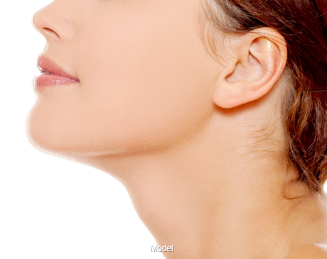 Woman with Chin Surgery