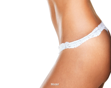 Woman with Tummy Tuck