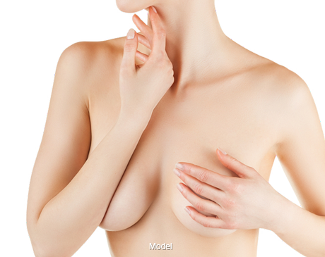Woman with subglandular implant placement
