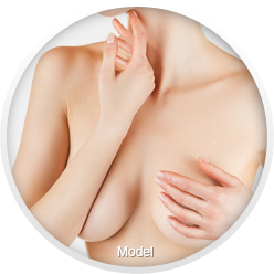 Woman with submuscular breast implant placement