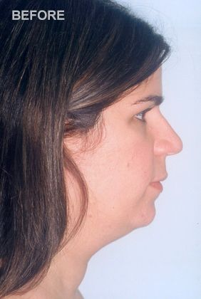 Woman before neck lift surgery.