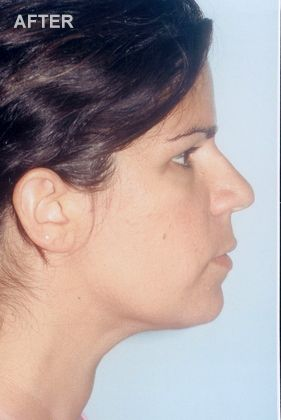 Woman after neck lift surgery.