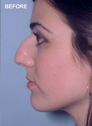 Woman before rhinoplasty surgery.