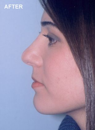 Woman after rhinoplasty surgery.