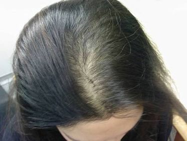 Top of woman's head shows her hair is thinning